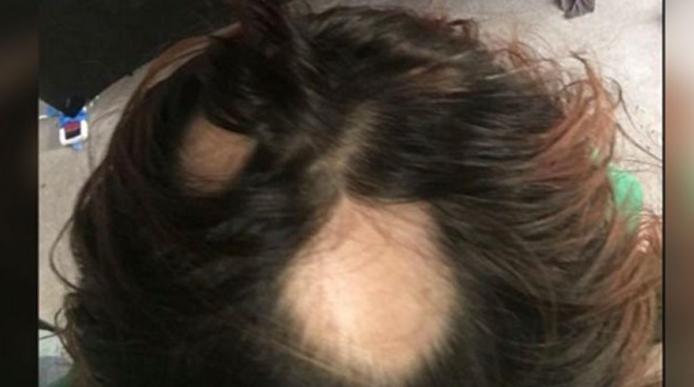 200 Women Sue Wen Hair Care For Hair Loss Kfor Com Oklahoma City