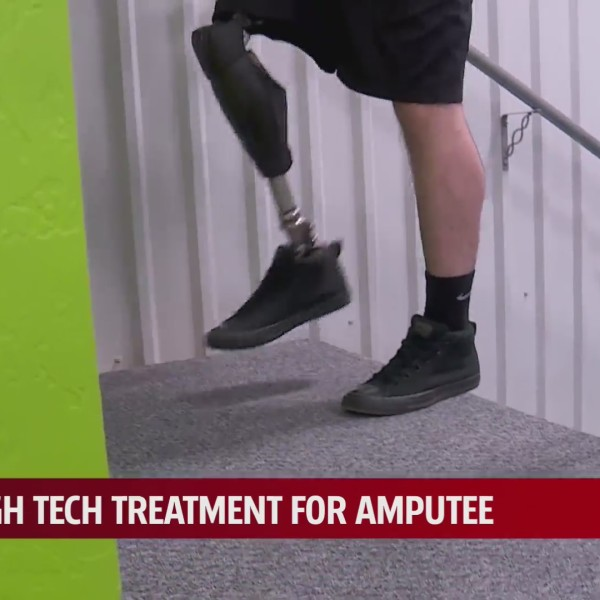 man tests out prosthetic by climbing stairs