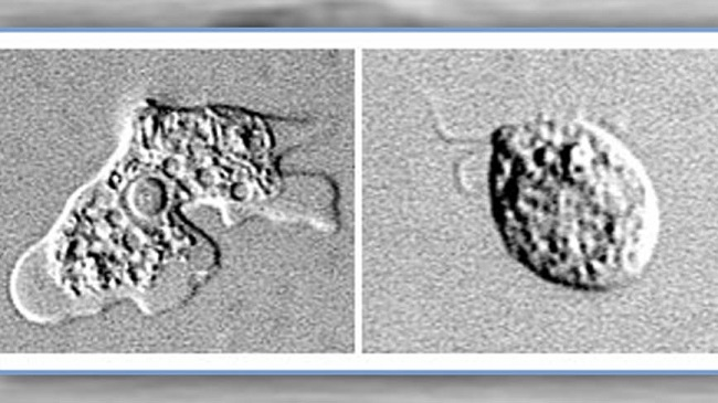 Brain eating amoeba
