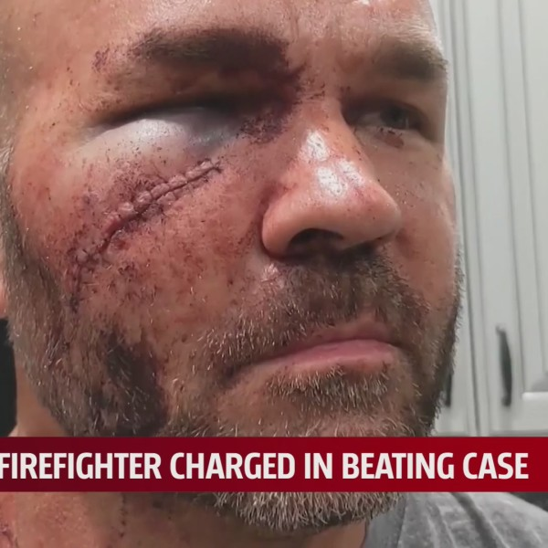 Chad Williamson shows his stitched cheek and black eye after altercation with a Newcastle firefighter in July